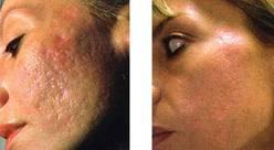 cuerpo-foto acne